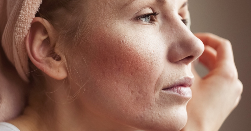 How to Get Rid of Rosacea Symptoms